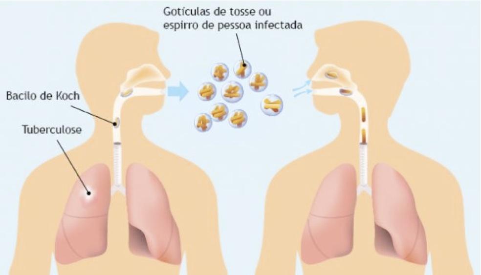 Focar de TBC la o școală din Roșiorii de Vede